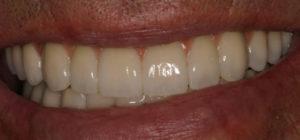 Los Angeles Dental Implants Results
