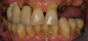 Los Angeles Dental Implant Before