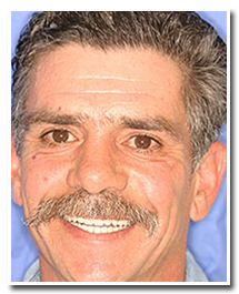 Los Angeles dental implants photo of patient (pm1-3-cover) in the smile gallery of Dr. Robert Thein.