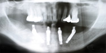 Photo of All-On-4 dental implants x-ray for Los Angeles implant dentist Dr. Robert Thein of Boston Dental Care.