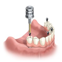 Photo of All-On-4 dental implants from Los Angeles implant dentist Dr. Robert Thein of Boston Dental Care.