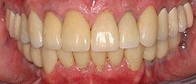 After porcelain crowns photo for a beautiful smile guarantee from Glendale dentist Dr. Robert Thein