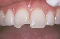 Photo of chipped tooth in need of dental bonding from Glendale cosmetic dentist Dr. Robert Thein.