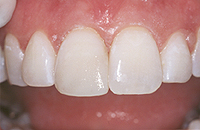 After photo of a chipped tooth repaired with dental bonding, available in Glendale from cosmetic dentist Dr. Robert Thein.