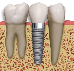 Photo of Glendale dental implant, not a dental bridge, which are both available from Dr. Robert Thein of Boston Dental Care.