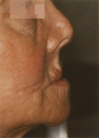Facial collapse photo for Los Angeles implant dentist Dr. Robert Thein.