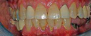 Porcelain crowns and veneers case (patient J2) from Glendale dentist Dr. Robert Thein.
