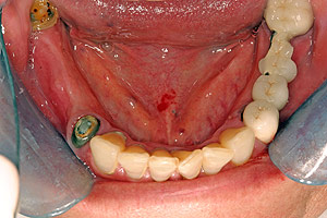 Porcelain crowns and veneers case (patient J3) from Glendale dentist Dr. Robert Thein.