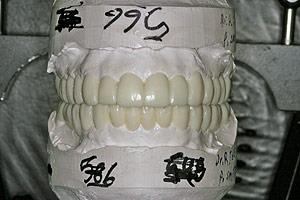 Porcelain crowns and veneers case (patient J4) from Glendale dentist Dr. Robert Thein.