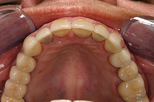 Porcelain crowns and veneers case (patient J6) from Glendale dentist Dr. Robert Thein.