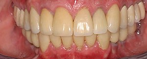 Porcelain crowns and veneers case (patient J8) from Glendale dentist Dr. Robert Thein.