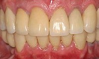 After picture of patient (J) for porcelain crowns from Glendale dentist Dr. Robert Thein.