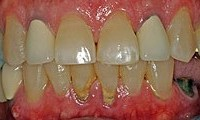 Before picture of patient (J) for porcelain crowns from Glendale dentist Dr. Robert Thein.