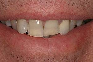 Before porcelain veneers photo of patient (J2) from Glendale cosmetic dentist Dr. Robert Thein.