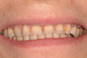 Second before Glendale porcelain crowns picture of patient (S) in the smile gallery of cosmetic dentist Dr. Robert Thein.