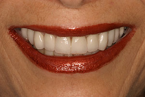 Third after Glendale porcelain crowns picture of patient (S) in the smile gallery of cosmetic dentist Dr. Robert Thein.