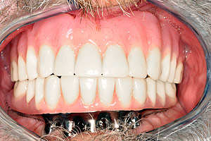 Los Angeles dental implants photo of patient (cg3) in the smile gallery of Dr. Robert Thein.