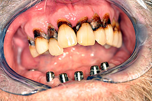 Los Angeles dental implants photo of patient (cg4) in the smile gallery of Dr. Robert Thein.