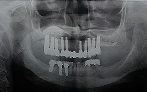 Glendale dental implants photo of patient (mag6) in the smile gallery of Dr. Robert Thein.