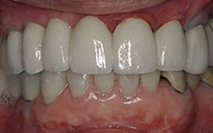 Glendale dental implants photo of patient (mag7) in the smile gallery of Dr. Robert Thein.