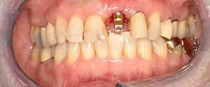 Glendale dental implants photo of patient (pf1-2) in the smile gallery of Dr. Robert Thein.