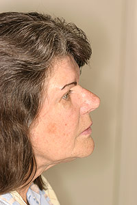 Los Angeles dental implants photo of patient (pf3-2) in the smile gallery of Dr. Robert Thein.