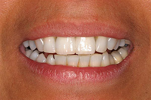 Los Angeles dental implants photo of patient (pf6-1) in the smile gallery of Dr. Robert Thein.