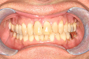 Glendale dental implants photo of patient (pm2-2) in the smile gallery of Dr. Robert Thein.