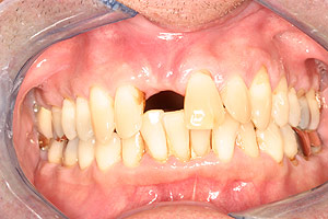 Los Angeles dental implants photo of patient (pm2-3) in the smile gallery of Dr. Robert Thein.