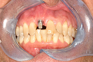 Glendale dental implants photo of patient (pm2-4) in the smile gallery of Dr. Robert Thein.
