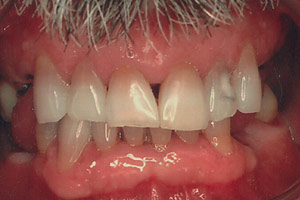 Los Angeles dental implants photo of patient (st2) in the smile gallery of Dr. Robert Thein.