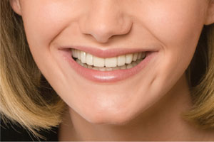 After photo for the Snap-On Smile, which is available from Glendale dentist Dr. Robert Thein.