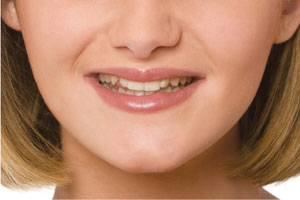 Before photo for the Snap-On Smile, which is available from Glendale dentist Dr. Robert Thein.