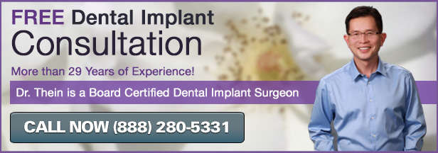 Dr. Robert Thein offers free dental implant consultations in La Crescenta.