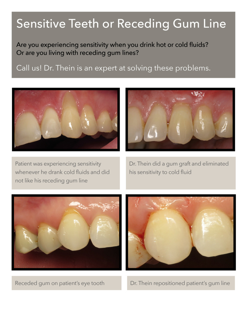 gum graft before after photos tooth sensitivity