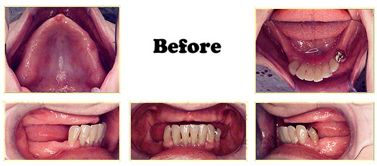 Los Angeles dental implants photo of patient (pf2-5) in the smile gallery of Dr. Robert Thein.