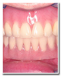 Los Angeles dental implants photo of patient (pf2-cover) in the smile gallery of Dr. Robert Thein.