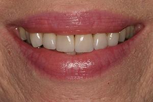 glendale smile makeover before after