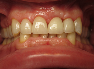 Los Angeles gum grafting, crown lengthening, dental implants.