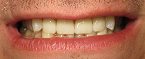 Los Angeles dental implants photo of patient (pm3-2) in the smile gallery of Dr. Robert Thein.
