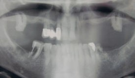 Los Angeles dental implants xray before photo of patient Joe from Boston Dental Care, the office of Dr. Robert Thein.