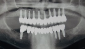 Los Angeles dental implants xray after photo of patient Joe from Boston Dental Care, the office of Dr. Robert Thein.