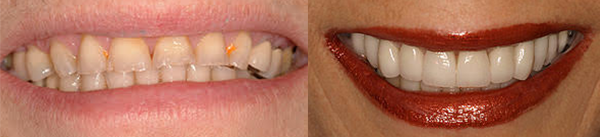 glendale smile makeover