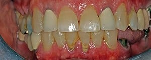 Closeup before dental implants