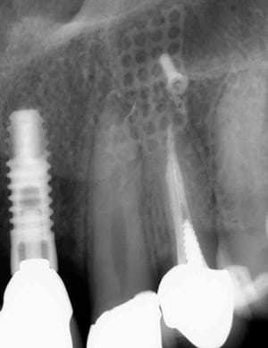 xray of dental implants