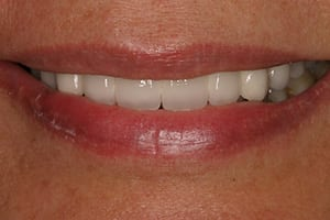 Closeup of Julie's smile after dental implant procedure