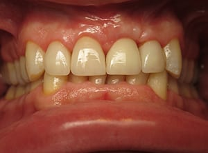 Closeup of mouth after dental implant surgery