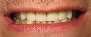 Closeup of dental implant work