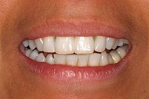 Los Angeles dental implants photo of patient (pf6-3) in the smile gallery of Dr. Robert Thein.