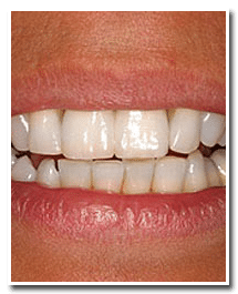 Los Angeles dental implants photo of patient (pf6-cover) in the smile gallery of Dr. Robert Thein.